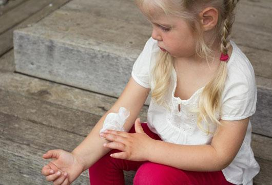 How to Avoid Eczema Flare Ups This Summer